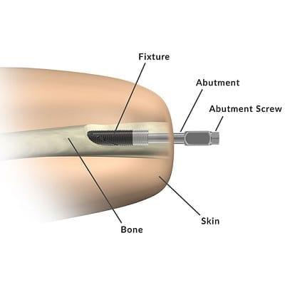 Osseointegration implant