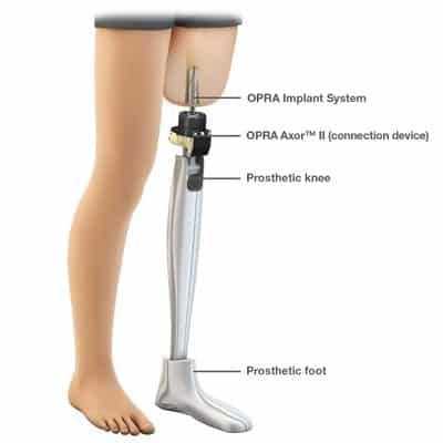 Osseointegration Leg Diagram