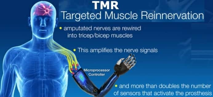 Targeted Muscle Reinnervation Can Play Key Role in Mind-Controlled Bionic Limbs