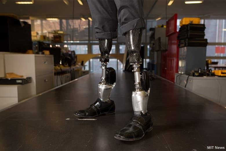 Understanding Bionic Legs & Feet