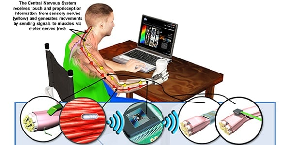 DARPA Two-Way Neural Interface