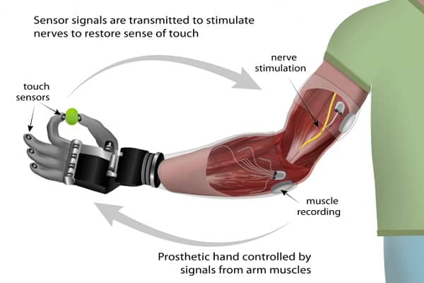 DARPA's Hybrid Neural Interface for Bionic Hands