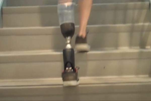 Bionic Feats: Conquering Stairs
