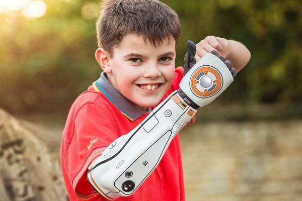 A Complete Guide to Bionic Arms & Hands