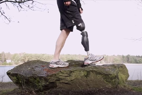 A Complete Guide to Bionic Legs & Feet
