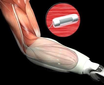 DARPA Implanted Myoelectric Sensors