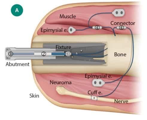 Integrum e-Opra Implant System