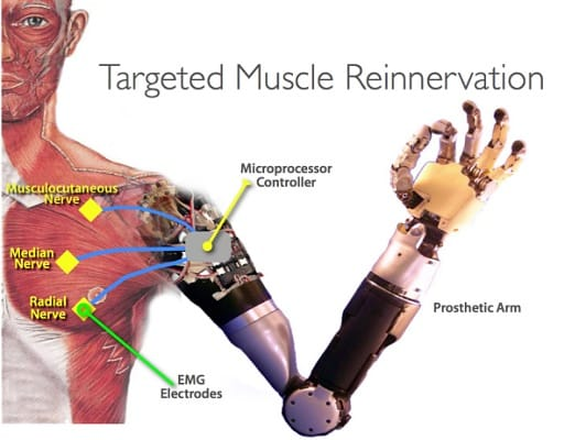 Targeted Muscle Reinnervation