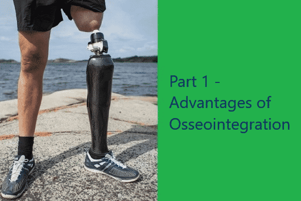 Part 1: Advantages of Osseointegration
