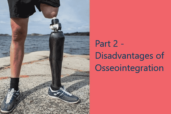 Part 2 – Disadvantages of Osseointegration