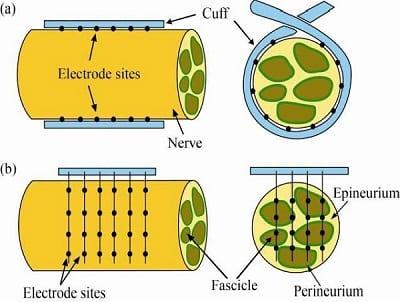 Peripheral Nerve Cuff Electrode