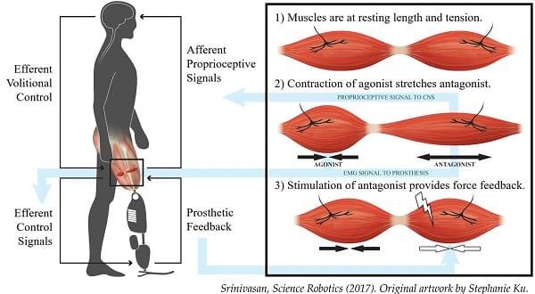 AMI Bionic Limb Control
