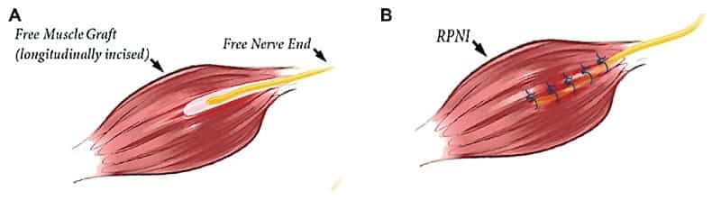 RPNI Muscle Graft