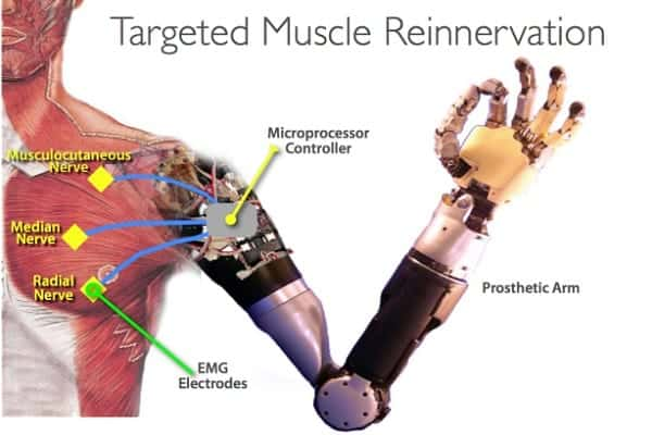 Targeted Muscle Reinnervation Feature Image