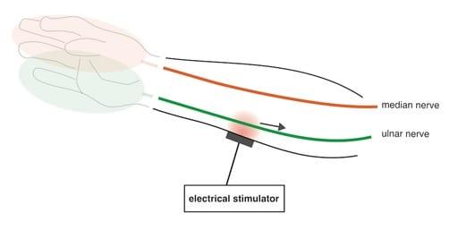 Transcutaneous Electrical Nerve Stimulation Diagram