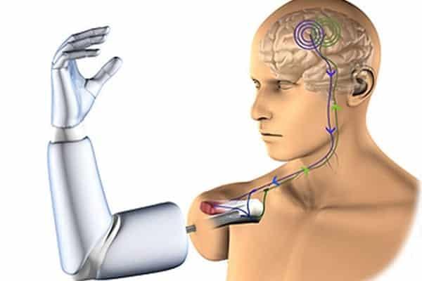 Bionic Limbs Research News July 04 2021